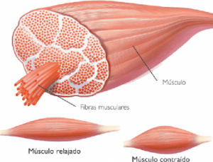 Músculo.Contractura muscular